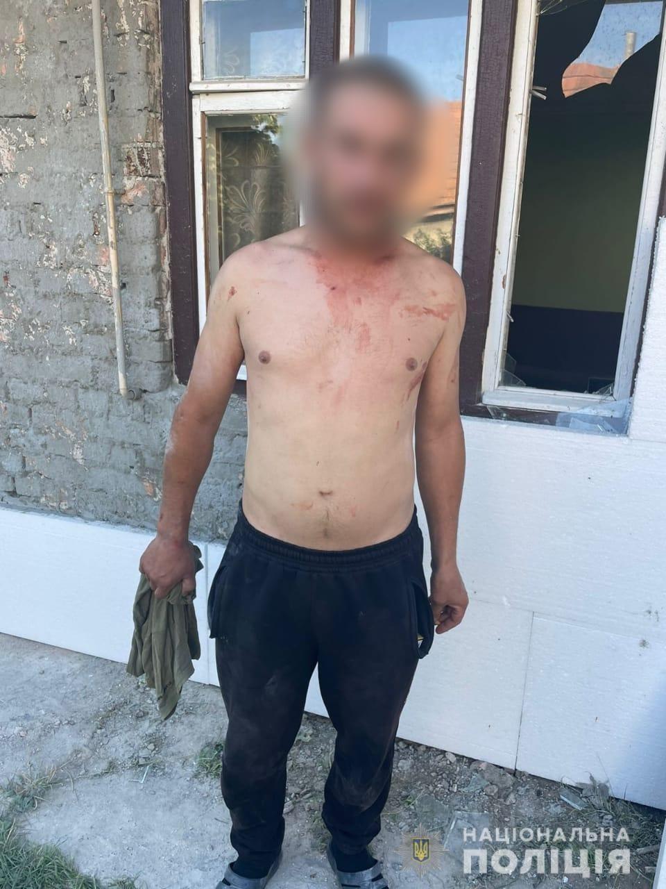 На Тячівщині чоловік поранив ножем співмешканця своєї сестри.