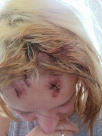 В Ужгороді серед білого дня на 20-річну дівчину напав чоловік.