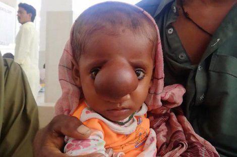 Видання Daily Mail повідомляє, щоу Пакистані народилась дитина з мозковою грижею (енцефалоцеле).