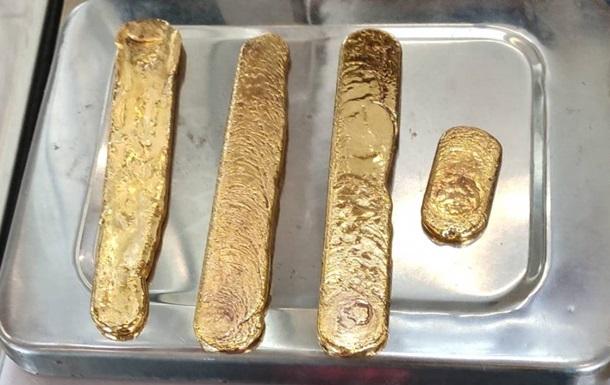 З товстої кишки порушника витягли численні сплющені шматки золота загальною вагою 972 грами.