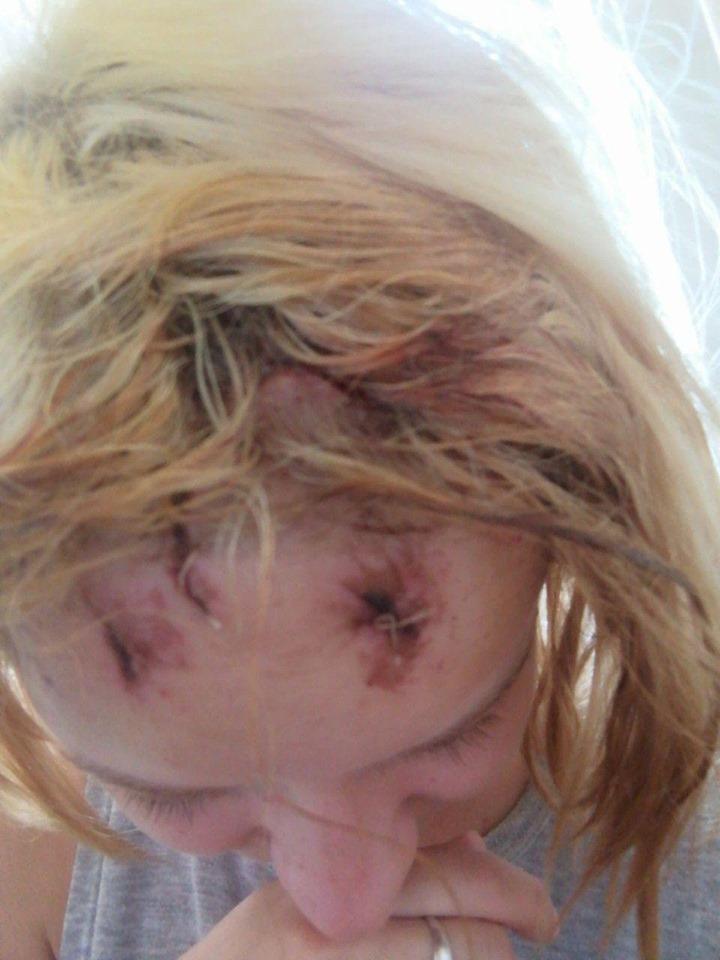 Серед білого дня в центрі Ужгорода роми розбили дівчині голову та вкрали около 5 000 гривень.