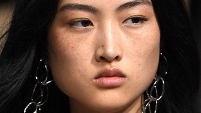 Китайські соцмережі вибухнули через нову рекламу іспанського бренду одягу Zara: користувачів обурили веснянки на обличчі місцевої моделі. Що з ними не так?