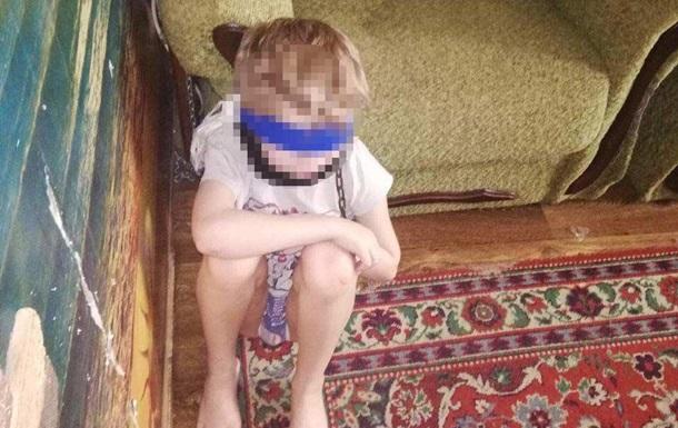 Крім цього хлопчика, жінка також є опікуном для дітей чотирьох, шести і тринадцяти років. Дітей вилучили з прийомної сім'ї, ведуться слідчі дії.