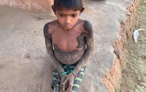 Дівчинка страждає на рідкісне захворювання, через яке її шкіра перетворилася на подобу каменя.
