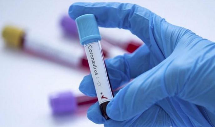 Від коронавірусу на гірській Рахівщині вже померли одинадцятеро людей