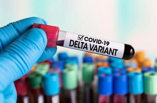 На Закарпатті підозрюють ще шість випадків Delta штаму: більшість пацієнтів були в РФ