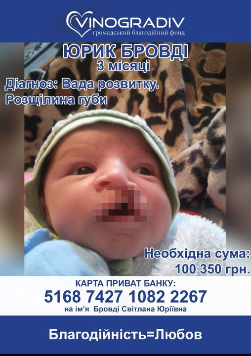 У дитини вроджена вада розвитку.