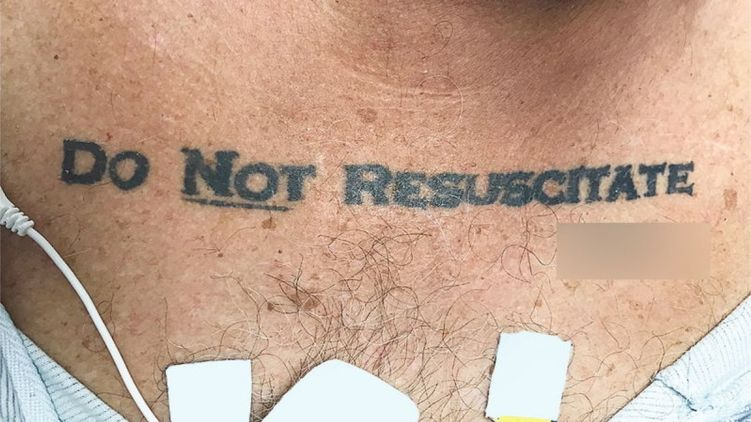Лікарі відмовилися рятувати пацієнта через його татуювання на грудях