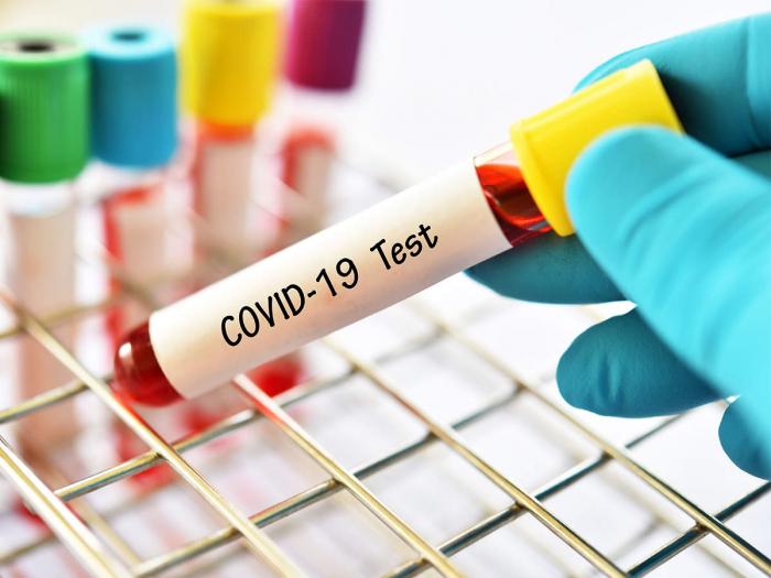 213 нових випадків COVID-19 виявили на Закарпатті за минулу добу, 12 жовтня.