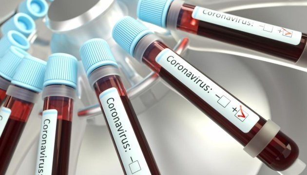 Історією своєї недуги з Голосом Карпат поділилась виноградівчанка, яка стала першою, у кого ПЛР тест на коронавірус дав позитивний результат.