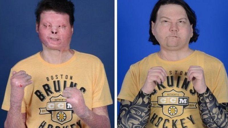 Медики в Нью-Йорку провели першу в історії успішну пересадку обличчя та подвійну трансплантацію рук.
