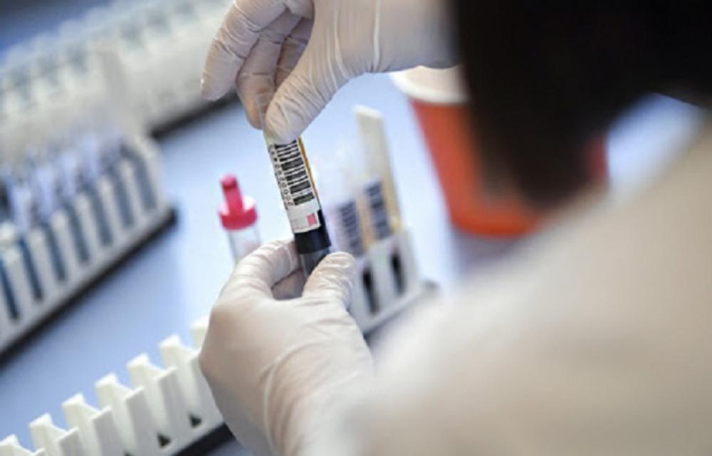 За минулу добу  у 100 осіб  на Закарпатті підтверджено коронавірус методом ПЛР.