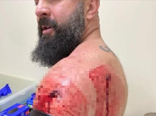 Вогнепальні поранення отримали Артур Пашкуляк та його охоронець.