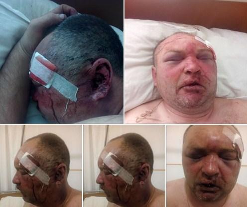 Правоохоронці вже розслідують інцидент із побиттям чоловіка на Хустщині.
