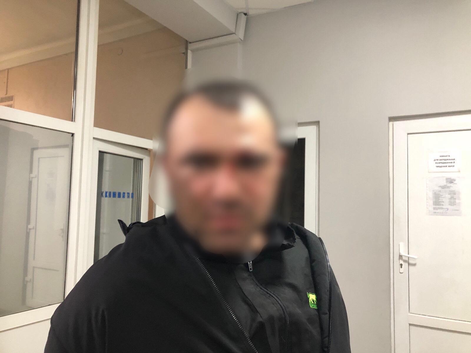 Затриманий виявився 31-річним жителем села Білки.