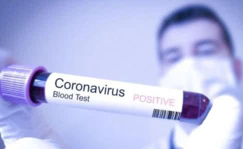 За минулу добу виявлено 4 нові випадки коронавірусної інфекції. Про це інформують у прес-службі Ужгородської міськради.
