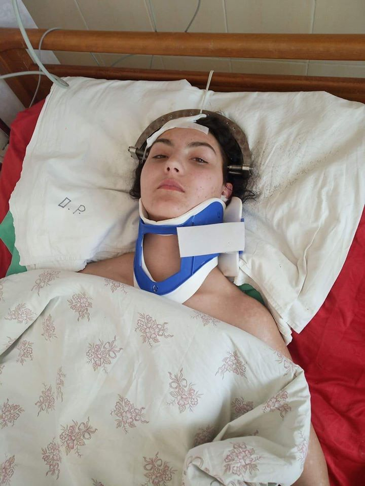 Із проханням допомогти у реабілітації дівчині, що постраждала у страшній ДТП 8 березня на Виноградівщині, просять у мережі.