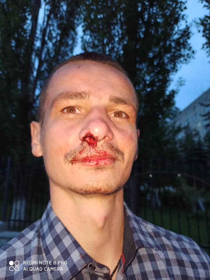 В обласному центрі скоїли напад на Олександра Лизанця, керівника федерації інвалідів Опорно-рухового апарату.